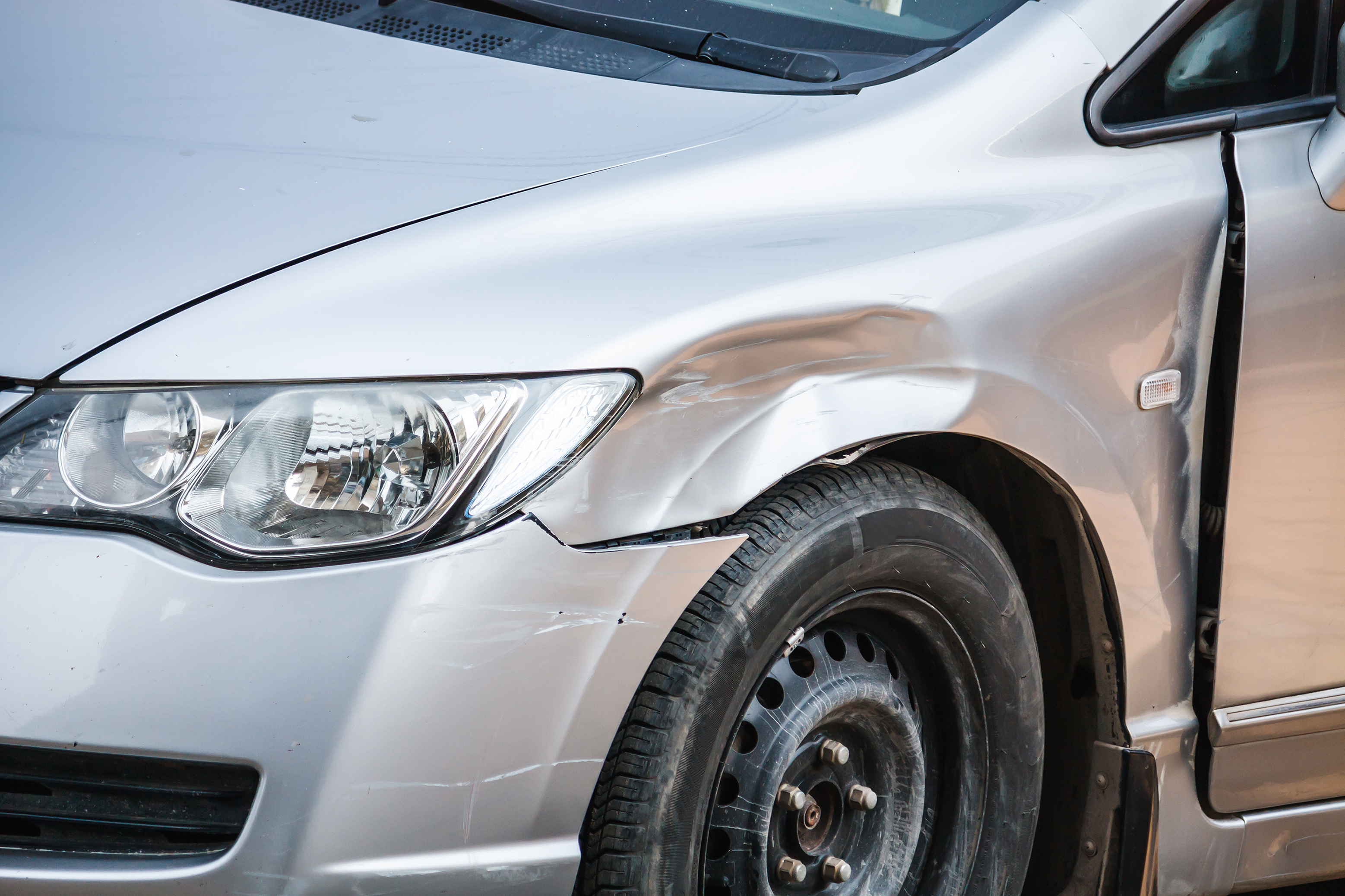 Dent Removal And The Benefits It Can Bring To Your Car